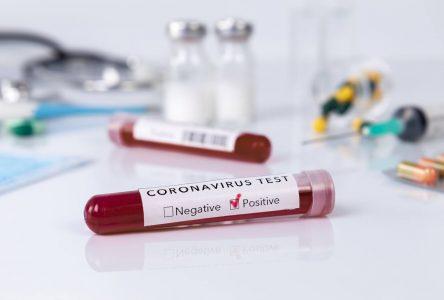 COVID-19 : l'analyse des tests de dépistage maintenant effectuée dans la région